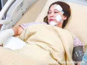 【蜗牛扑克】60岁武打女星疑被误喷汽油 片场起火灼伤脸部