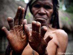 【蜗牛扑克】印度尼西亚部落Dani tribe断指习俗 失去一个亲人切掉一节手指头