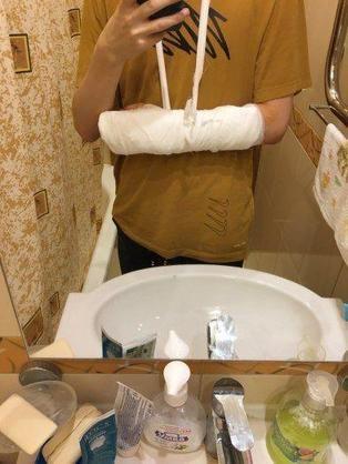 【蜗牛电竞】HR中单Ksani左臂骨折,gpk将替补出战